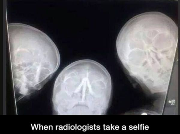 Radiografene